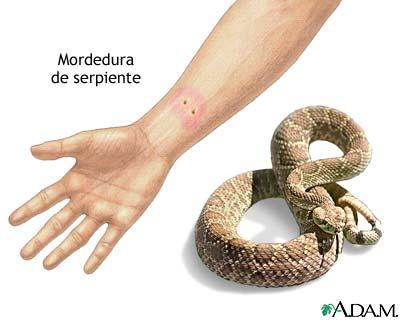 Picadura de serpiente